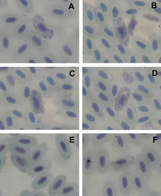 Haemoproteus circumnuclearis