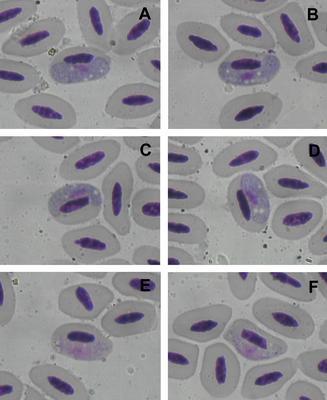 Haemoproteus brodkorbi
