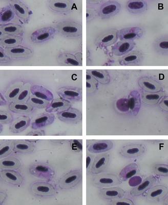 Haemoproteus majoris
