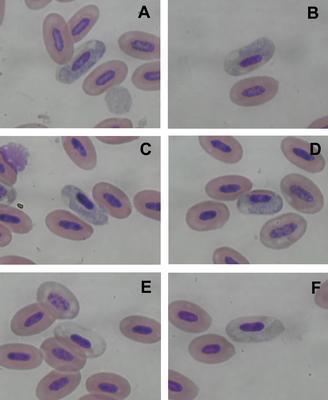 Haemoproteus mazzai