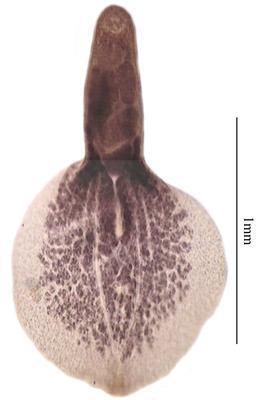 Neodiplostomum flabelliformis