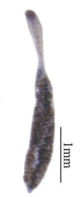 Rhopalotrema pterygionastes